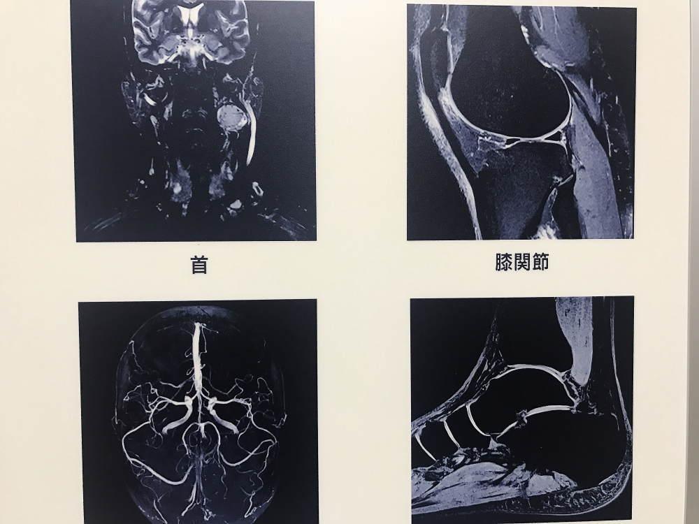 MRIで撮影